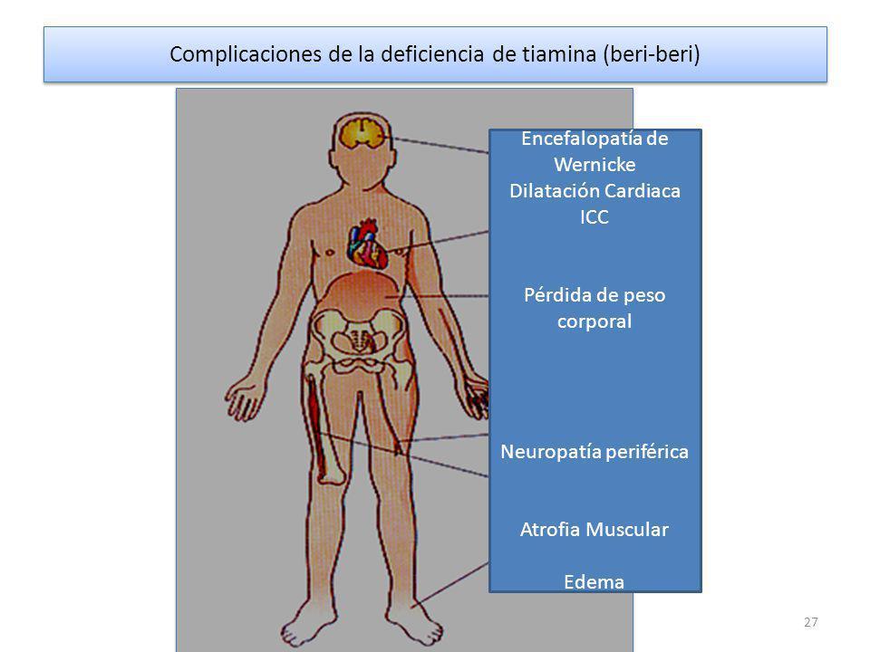 Complicaciones de la deficiencia de tiamina (beri-beri)