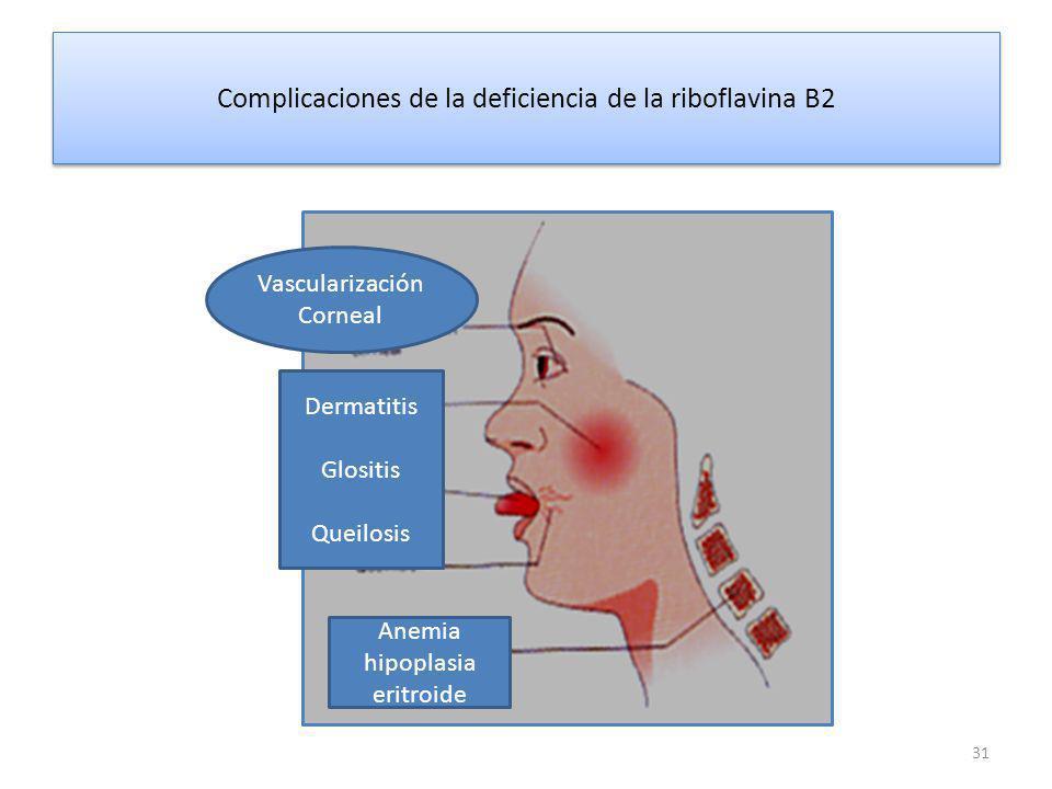 Complicaciones de la deficiencia de la riboflavina B2