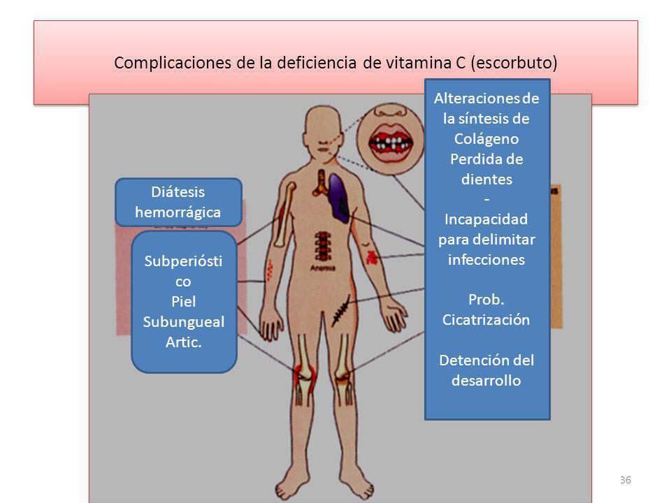 Complicaciones de la deficiencia de vitamina C (escorbuto)