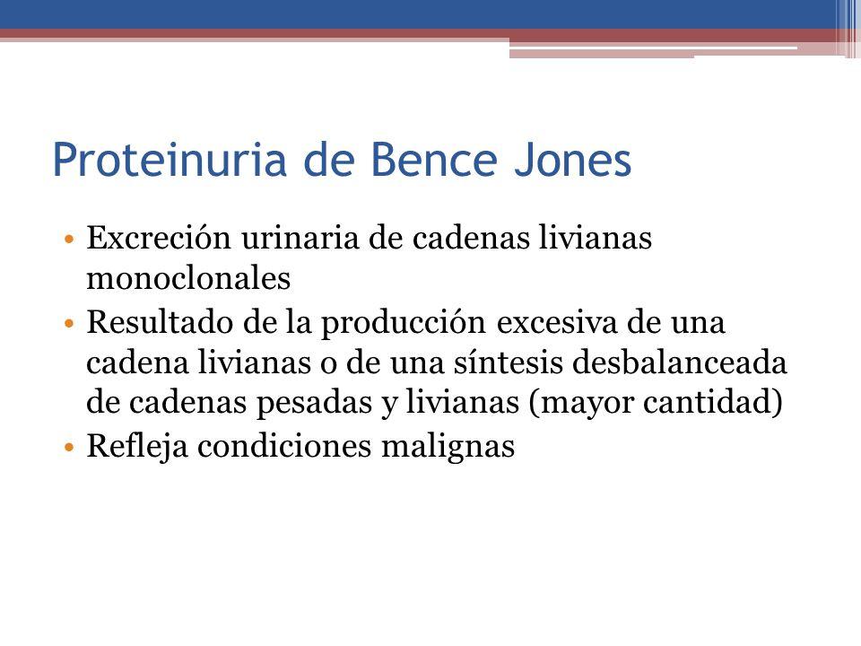 Proteinuria de Bence Jones