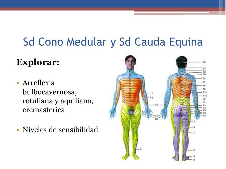 Sd Cono Medular y Sd Cauda Equina