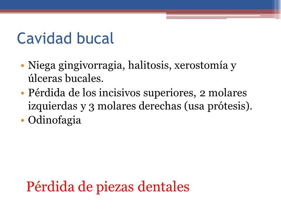 Cavidad bucal Pérdida de piezas dentales