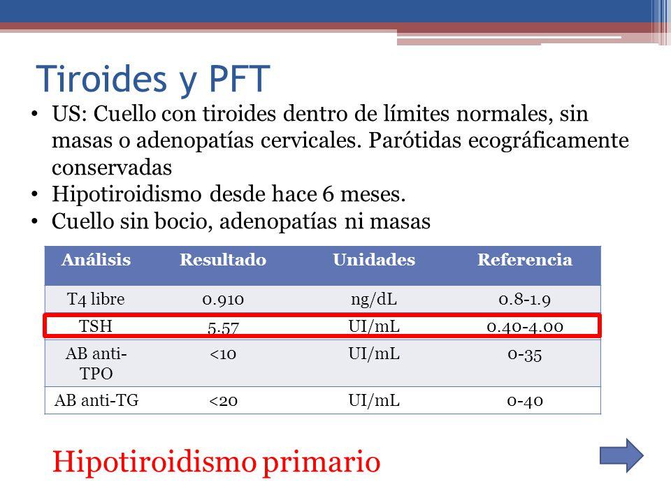 Tiroides y PFT Hipotiroidismo primario