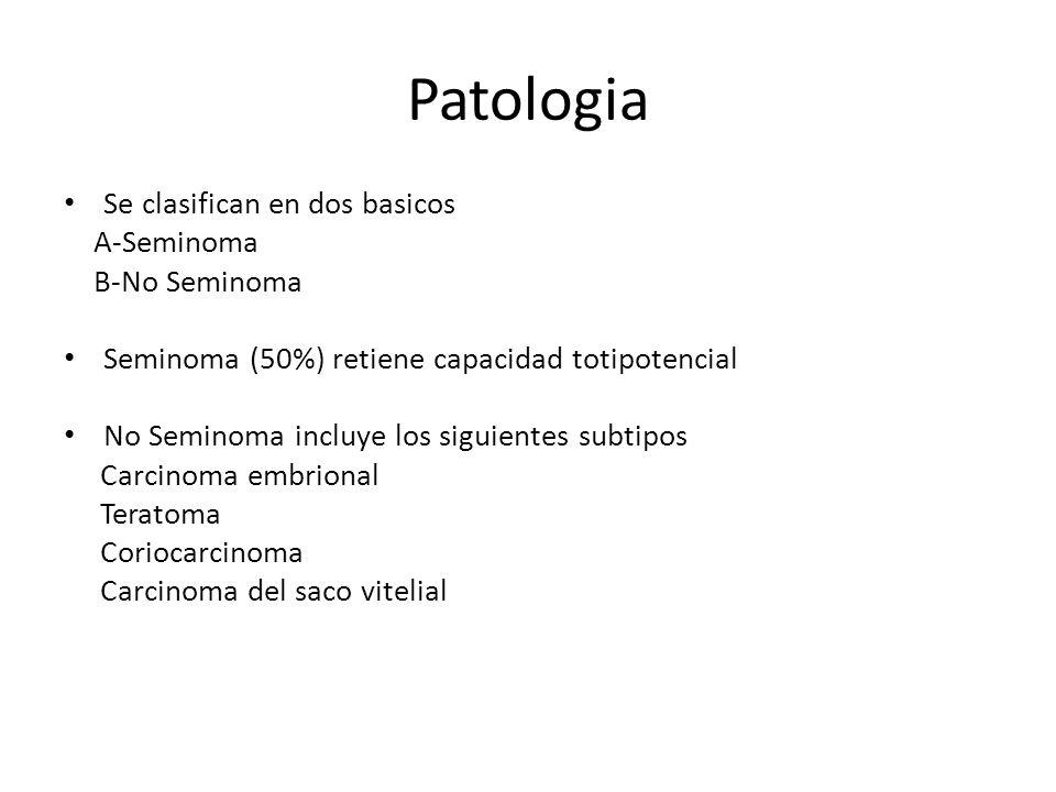 Patologia Se clasifican en dos basicos A-Seminoma B-No Seminoma