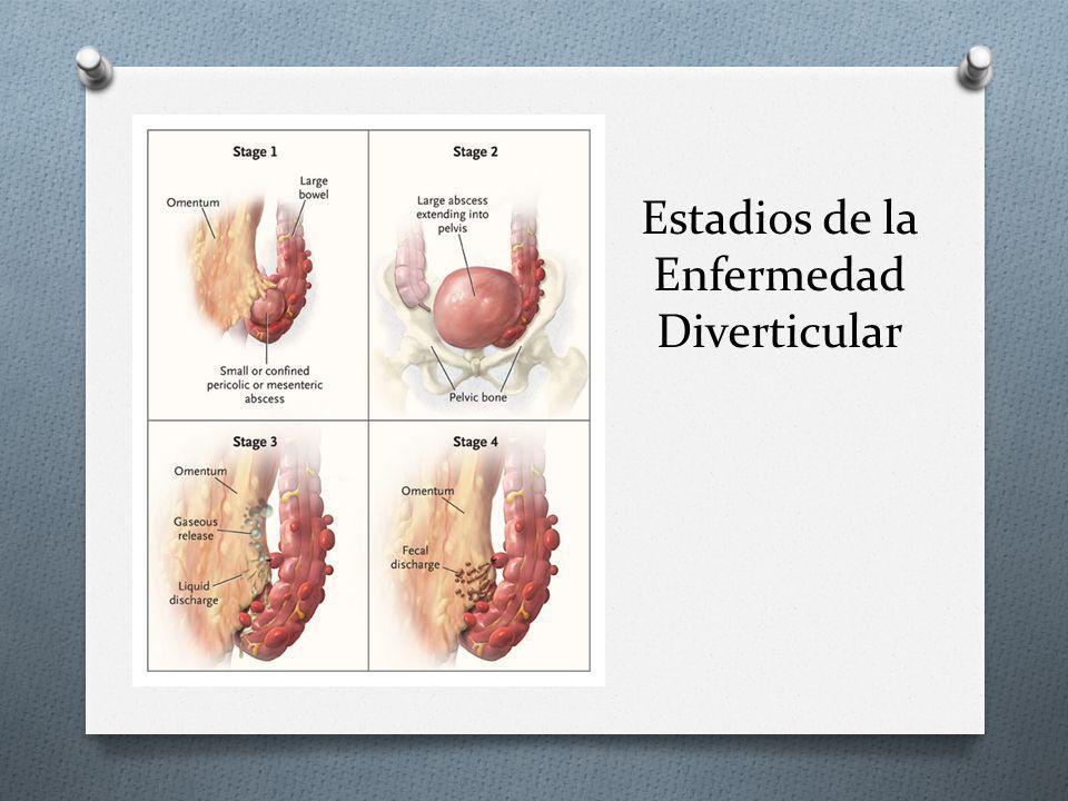 Estadios de la Enfermedad Diverticular