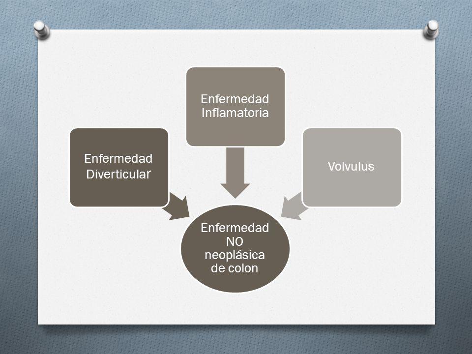 Enfermedad NO neoplásica de colon Enfermedad Diverticular
