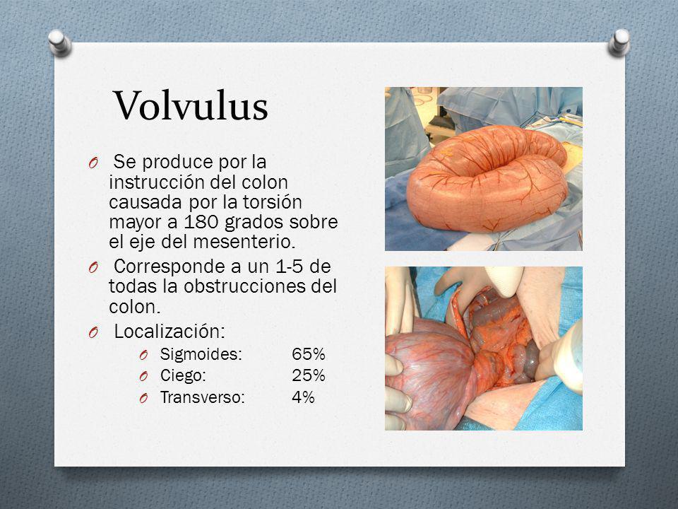 Volvulus Se produce por la instrucción del colon causada por la torsión mayor a 180 grados sobre el eje del mesenterio.
