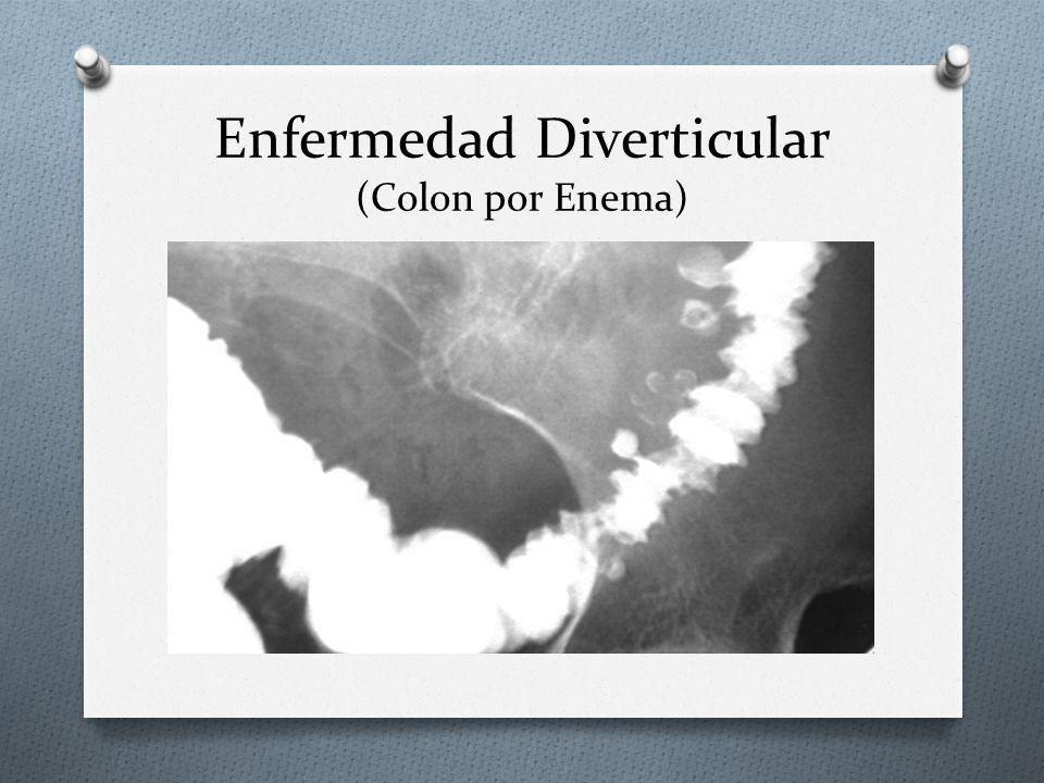 Enfermedad Diverticular (Colon por Enema)