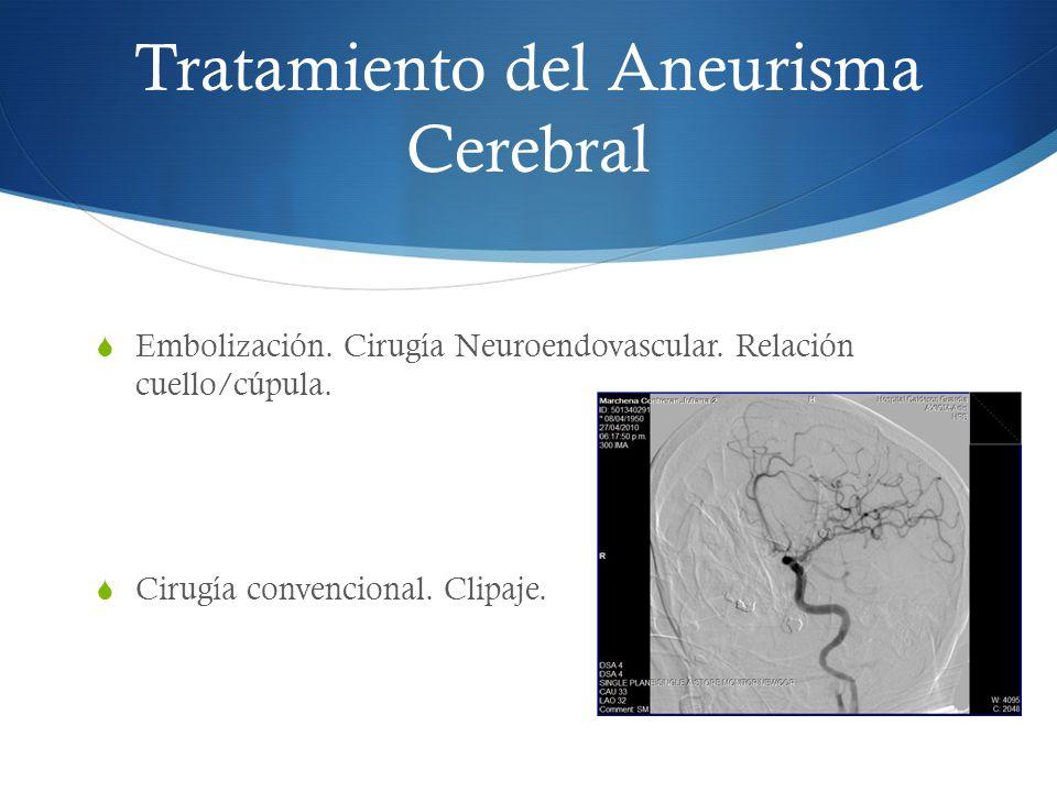 Tratamiento del Aneurisma Cerebral