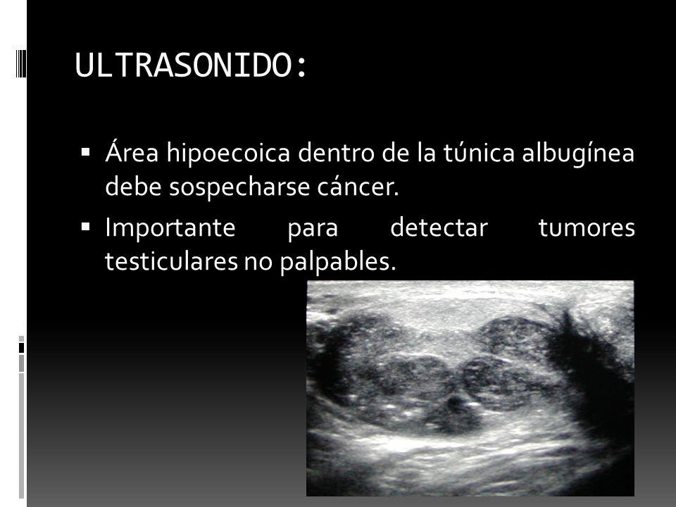 ULTRASONIDO: Área hipoecoica dentro de la túnica albugínea debe sospecharse cáncer.