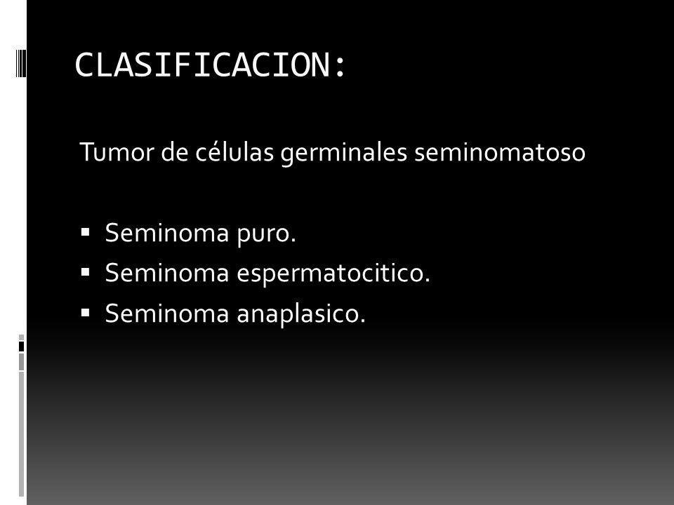CLASIFICACION: Tumor de células germinales seminomatoso Seminoma puro.