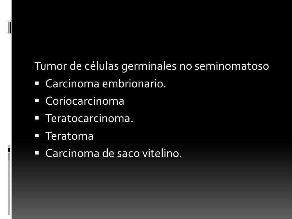 Tumor de células germinales no seminomatoso