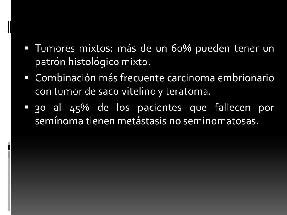 Tumores mixtos: más de un 60% pueden tener un patrón histológico mixto.