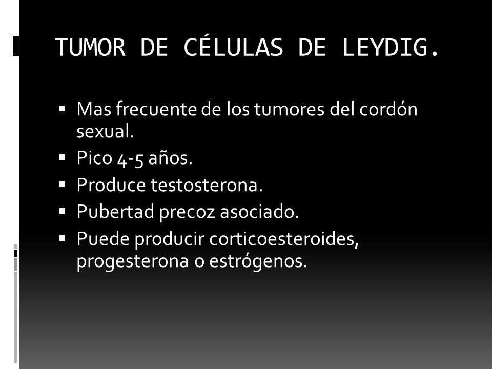 TUMOR DE CÉLULAS DE LEYDIG.