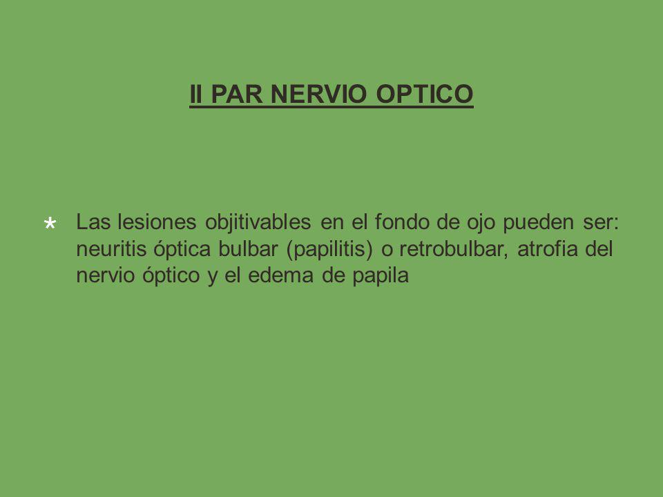 II PAR NERVIO OPTICO