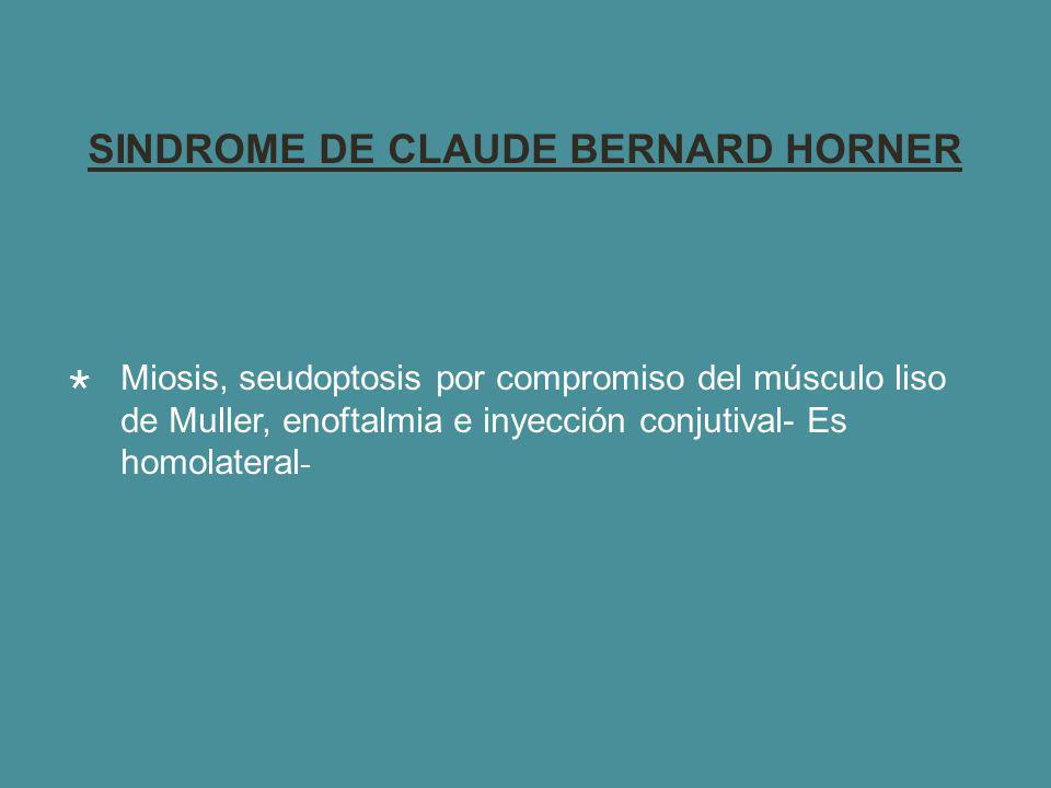 SINDROME DE CLAUDE BERNARD HORNER