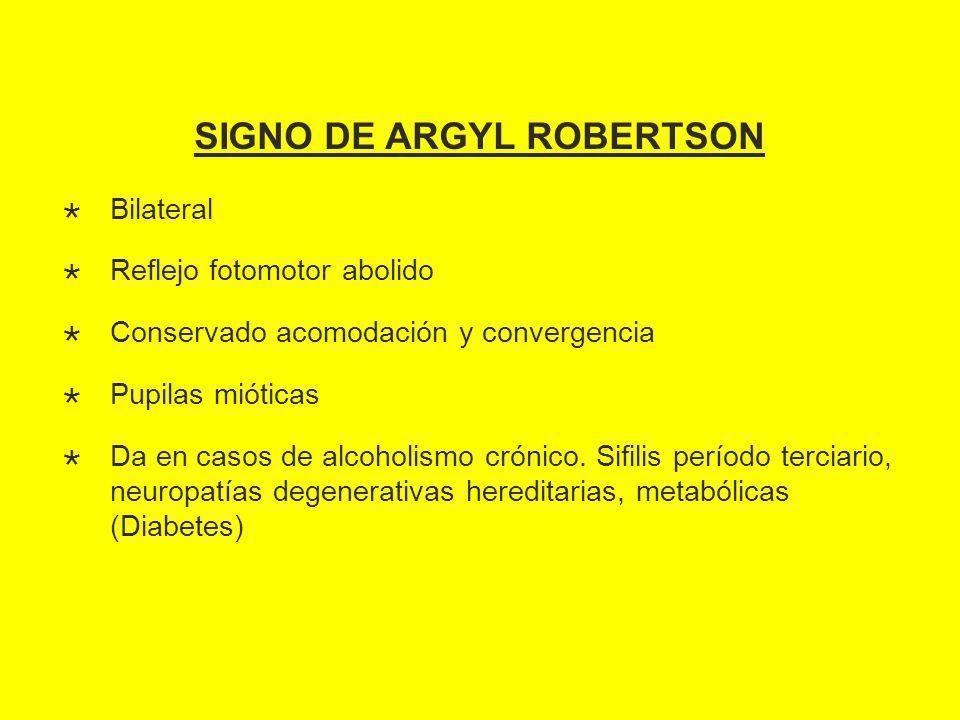 SIGNO DE ARGYL ROBERTSON