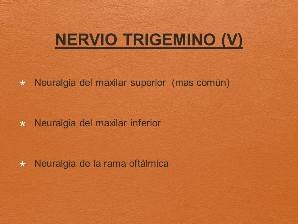 NERVIO TRIGEMINO (V) Neuralgia del maxilar superior (mas común)