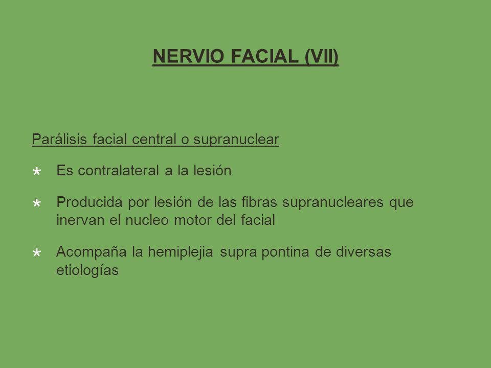 NERVIO FACIAL (VII) Parálisis facial central o supranuclear