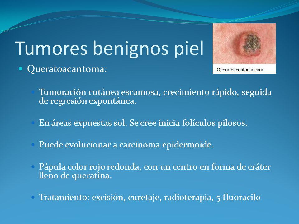 Tumores benignos piel Queratoacantoma: