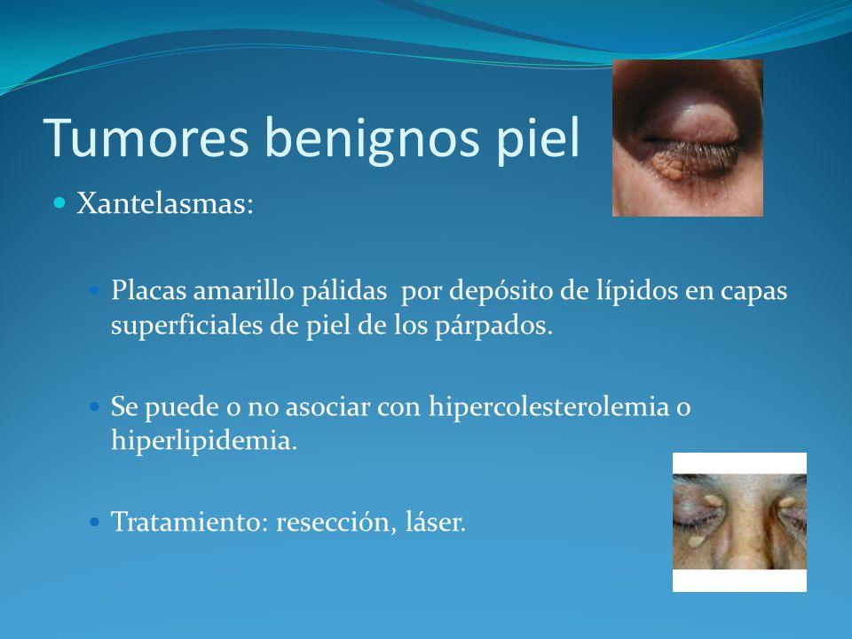 Tumores benignos piel Xantelasmas:
