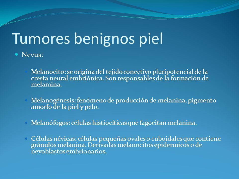 Tumores benignos piel Nevus: