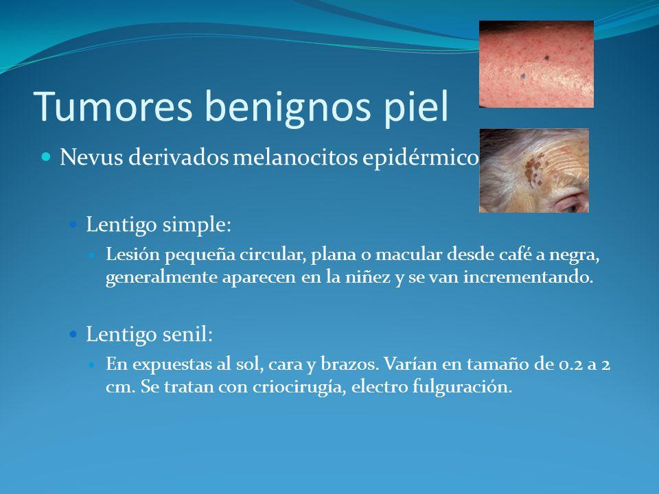 Tumores benignos piel Nevus derivados melanocitos epidérmicos: