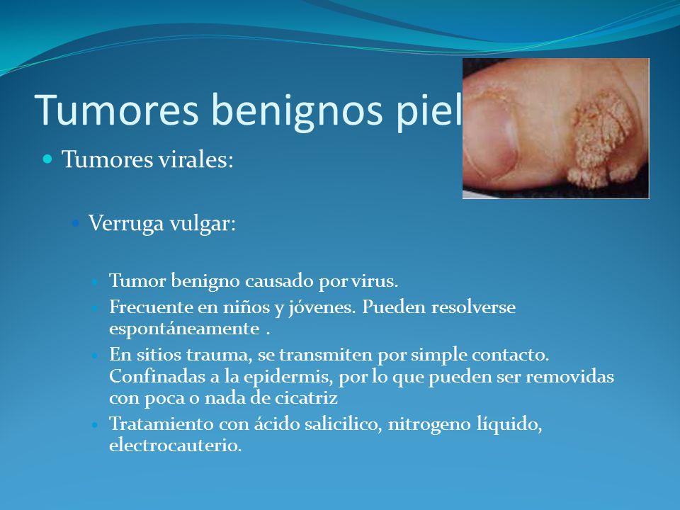 Tumores benignos piel Tumores virales: Verruga vulgar: