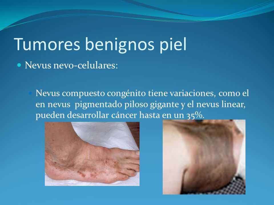 Tumores benignos piel Nevus nevo-celulares: