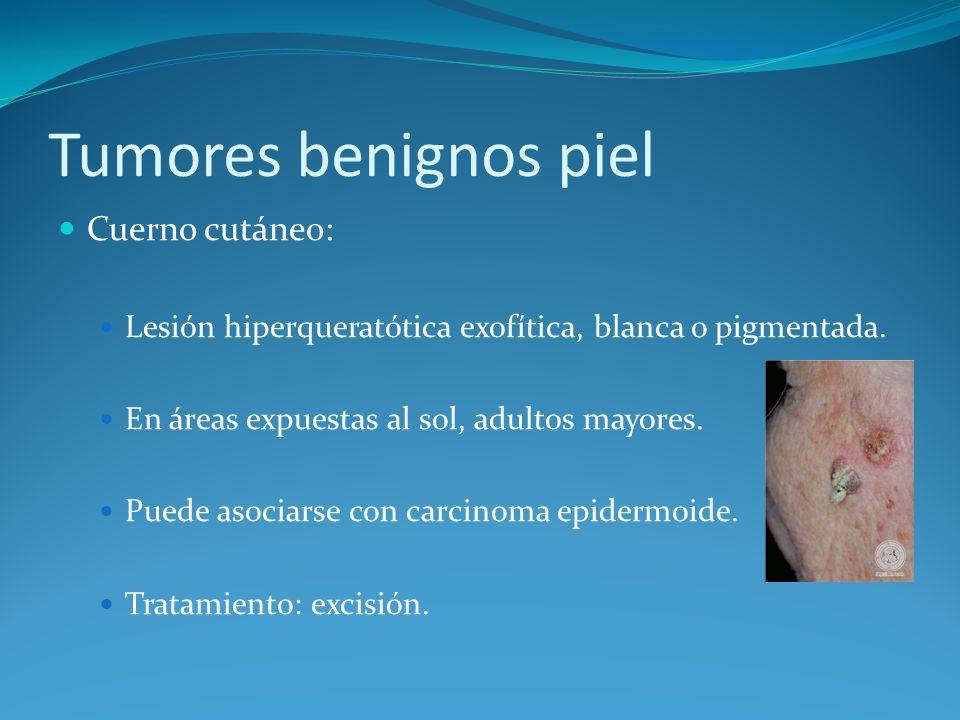 Tumores benignos piel Cuerno cutáneo: