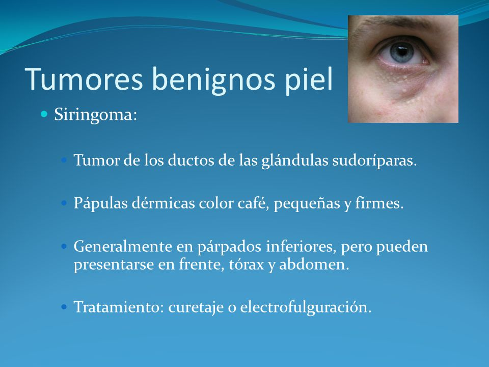 Tumores benignos piel Siringoma: