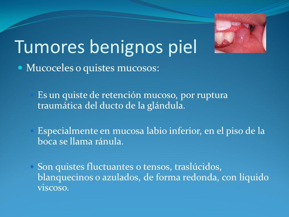 Tumores benignos piel Mucoceles o quistes mucosos: