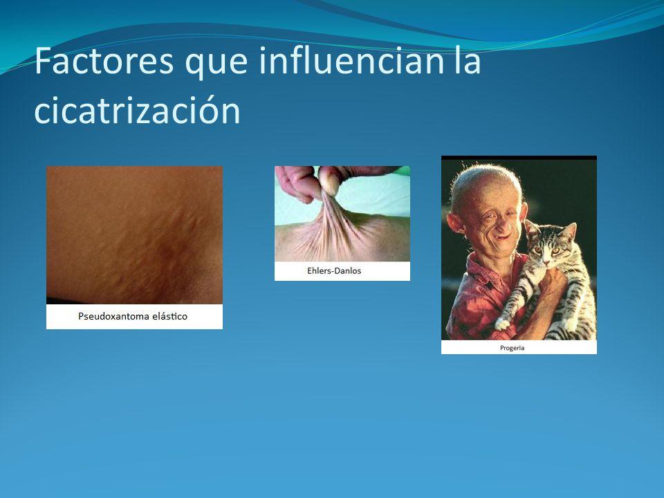 Factores que influencian la cicatrización