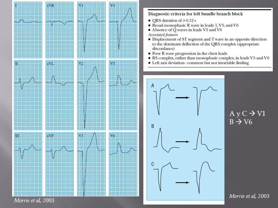 A y C  V1 B  V6 Morris et al, 2003 Morris et al, 2003