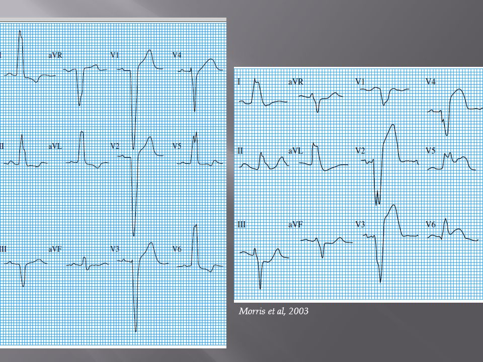 Appropriate discordance in uncomplicated left bundle branch block (note ST elevation in leads V1 to V3)