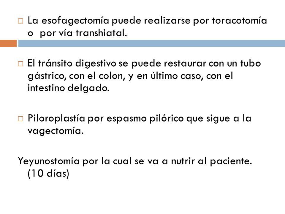 La esofagectomía puede realizarse por toracotomía o por vía transhiatal.
