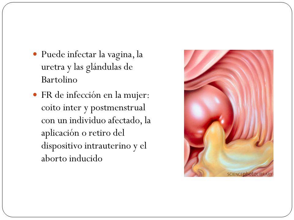 Puede infectar la vagina, la uretra y las glándulas de Bartolino
