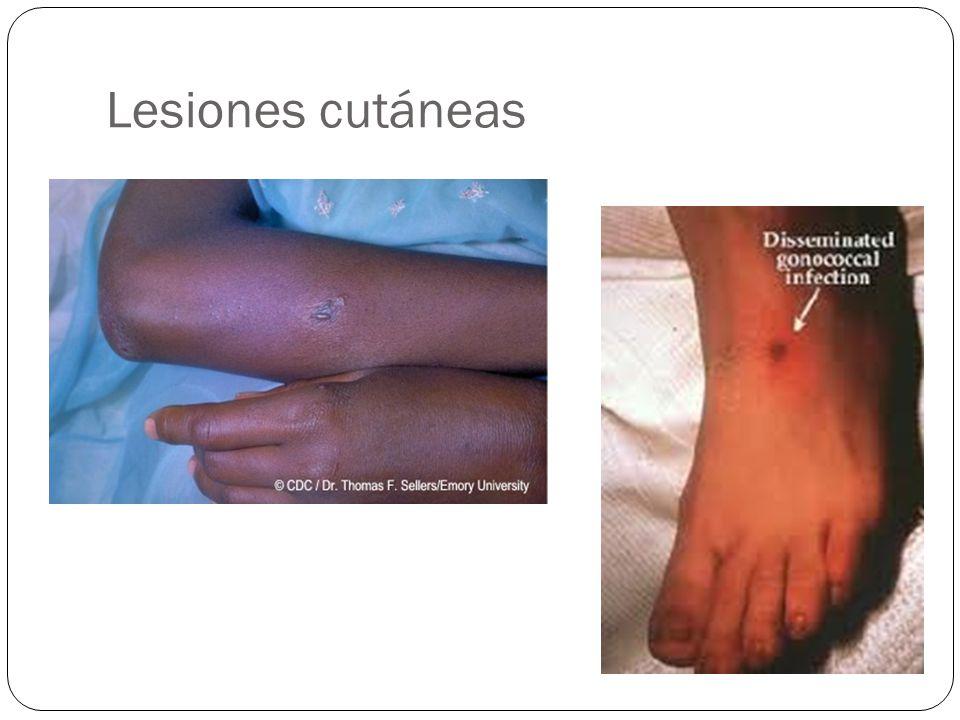 Lesiones cutáneas