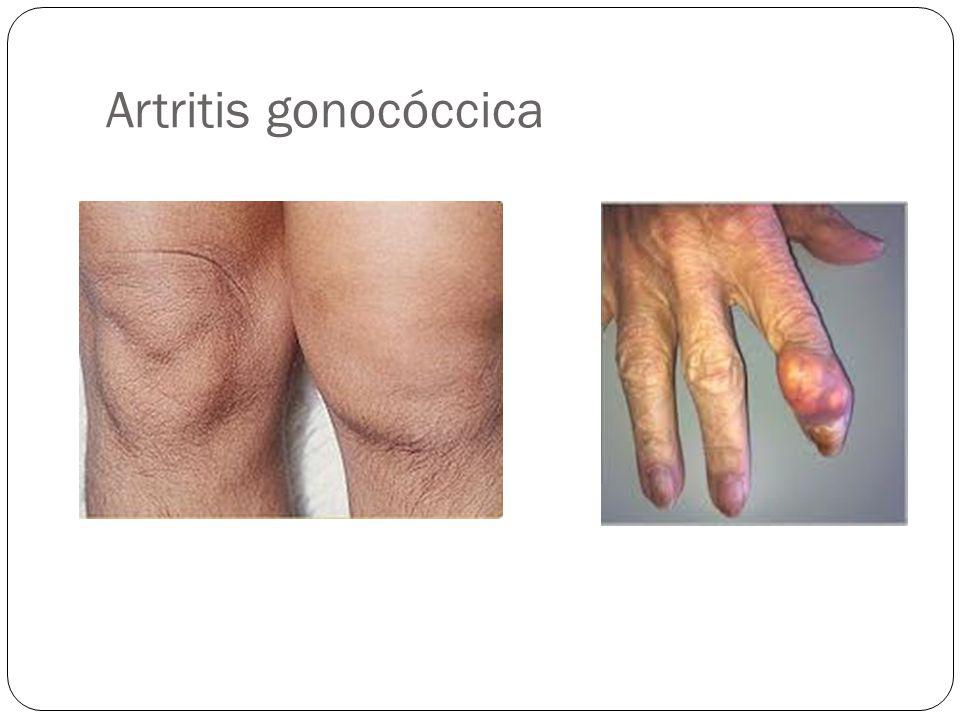 Artritis gonocóccica