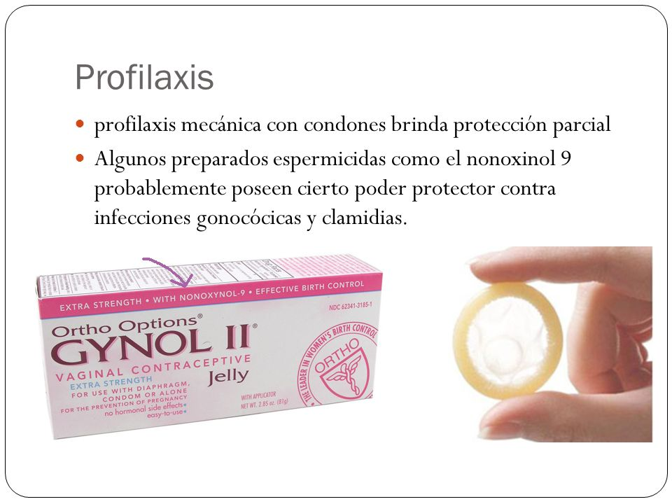 Profilaxis profilaxis mecánica con condones brinda protección parcial