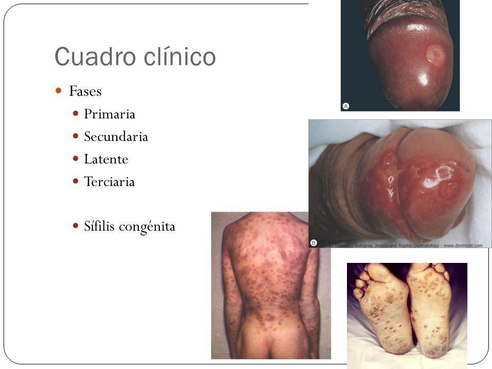 Cuadro clínico Fases Primaria Secundaria Latente Terciaria