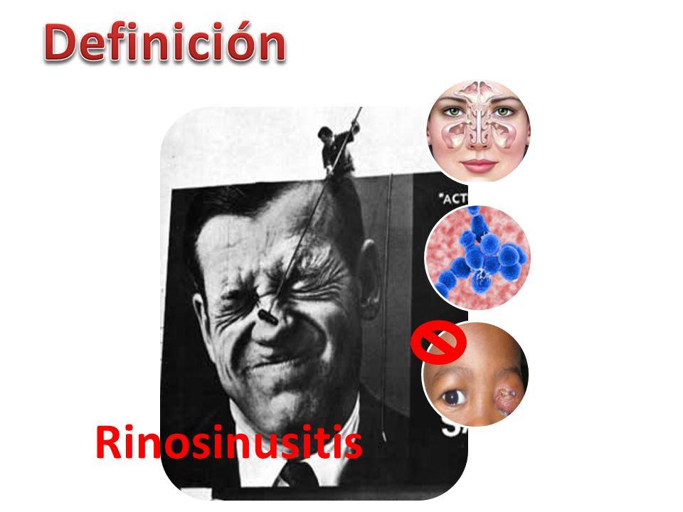 Definición Rinosinusitis