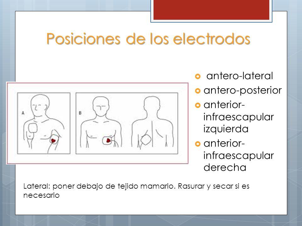 Posiciones de los electrodos