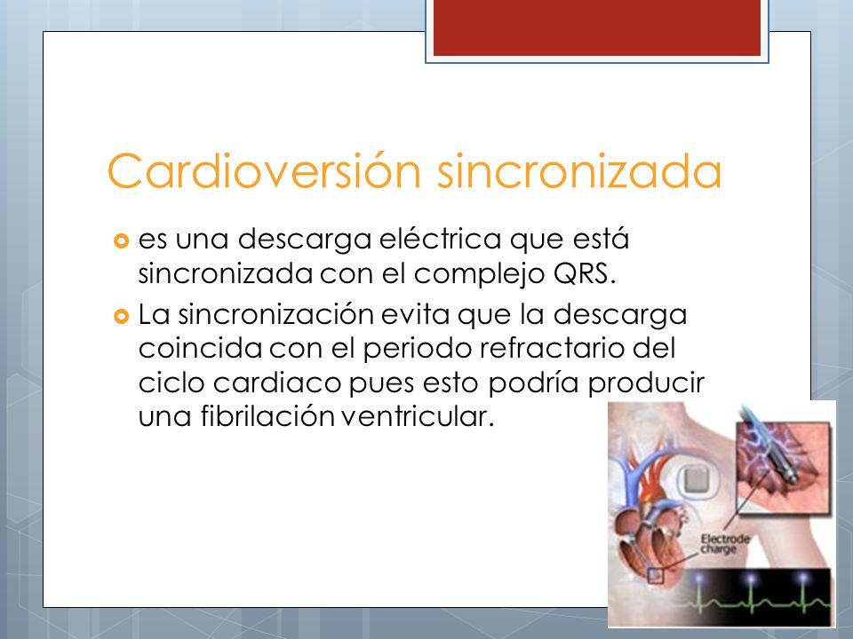 Cardioversión sincronizada