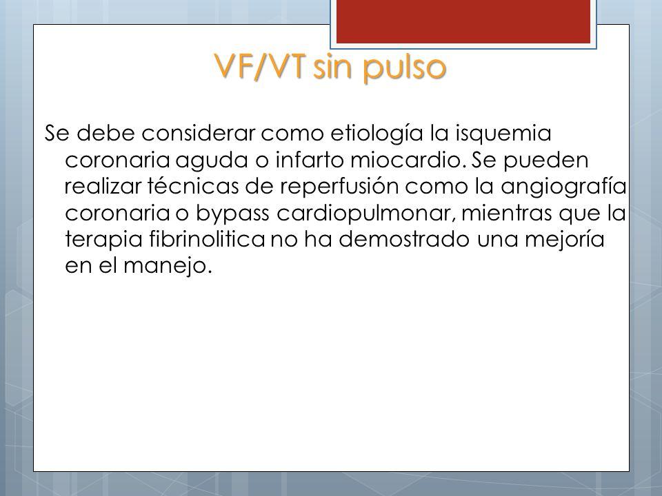 VF/VT sin pulso