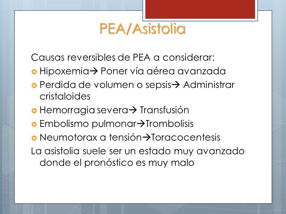 PEA/Asistolia Causas reversibles de PEA a considerar: