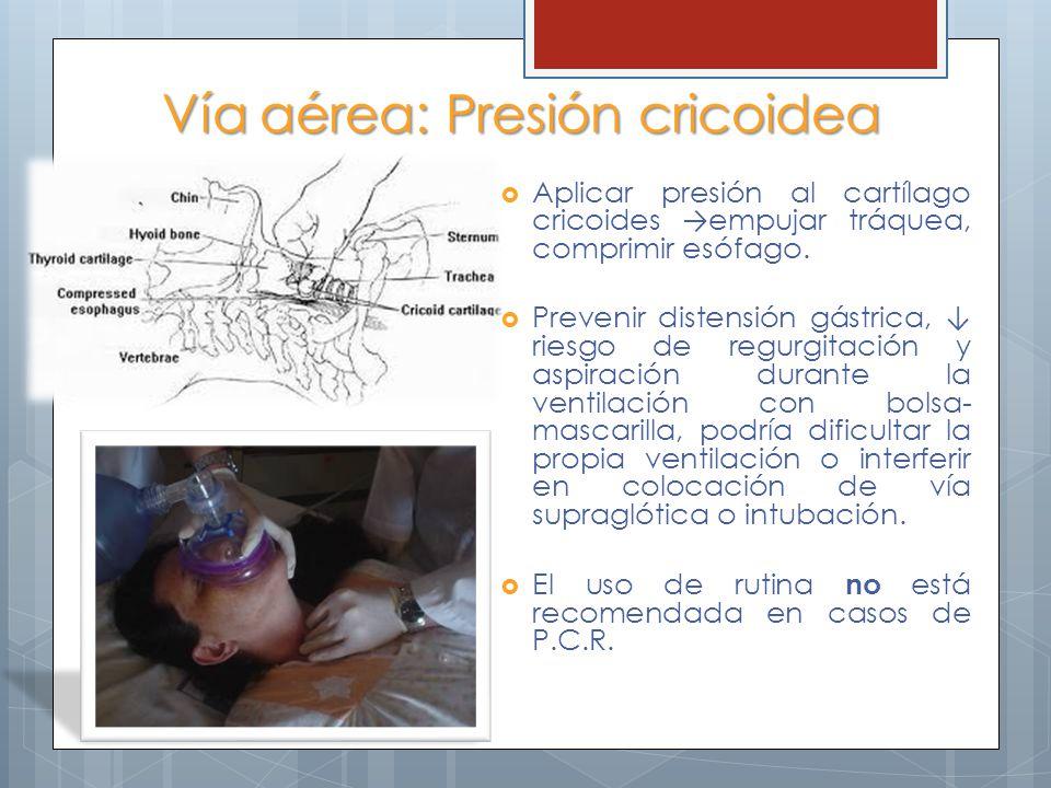 Vía aérea: Presión cricoidea