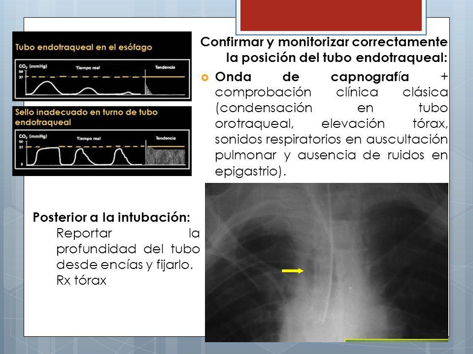 Confirmar y monitorizar correctamente la posición del tubo endotraqueal: