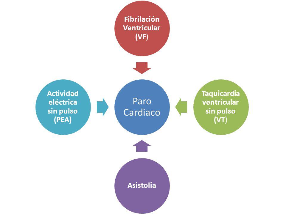 Actividad eléctrica sin pulso (PEA)