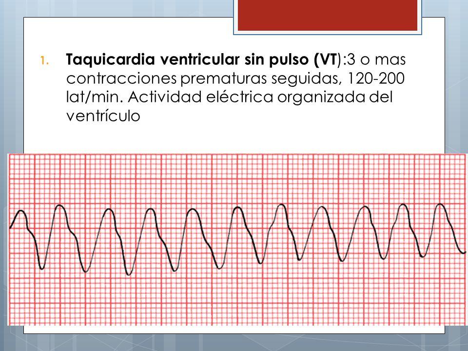 Taquicardia ventricular sin pulso (VT):3 o mas contracciones prematuras seguidas, 120-200 lat/min.